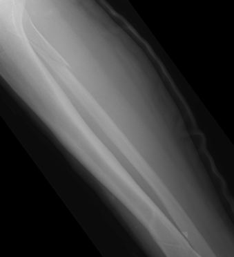 bone fractrue types and locations